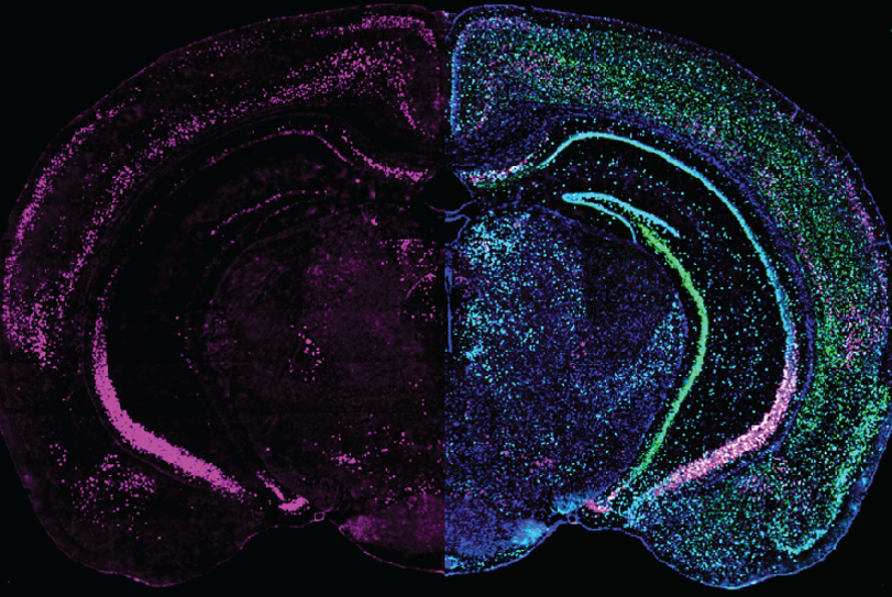 Brain slice - GRP expression (left) different cell markers (right)