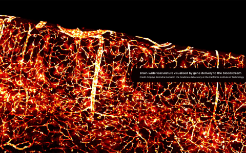 Brain-wide vasculature visualized by gene delivery to the bloodstream. Credit: Sripriya Ravindra Kumar in the Gradinaru laboratory at the California Institute of Technology